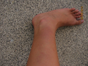Bruised Up